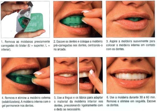 Gel De Clareamento Dental Kit Opalescence Go R 249 00 Em Mercado