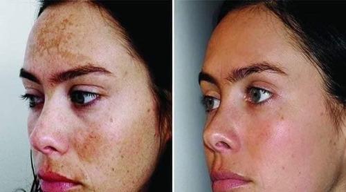 gel limpieza facial con acido glicólico 250ml de teoma