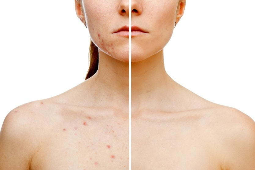 Como se librará de las manchas de pigmento sobre los labios