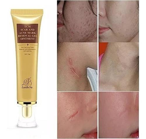 gel removedor lanbena cicatriz acné manchas estrías 30g full