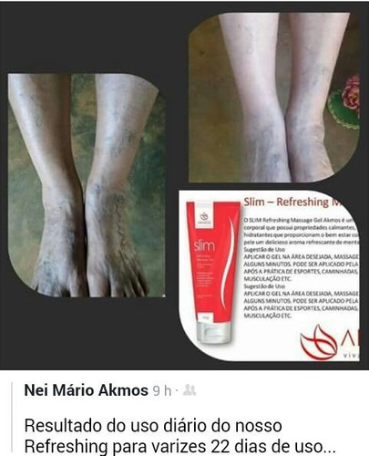gel slim refreshing massage akmos arnica  - ajuda varizes