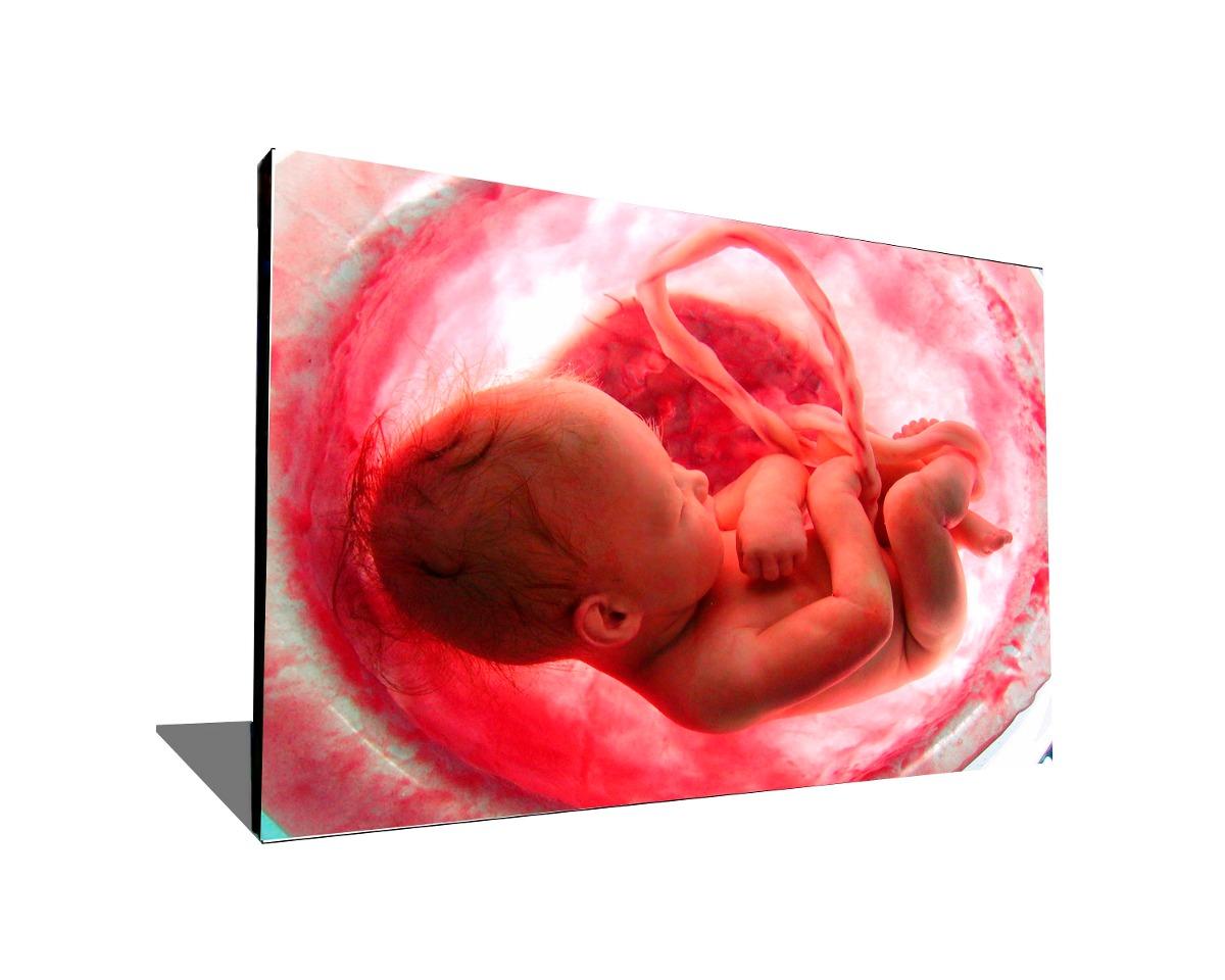 ginecologia cuadro para decorar