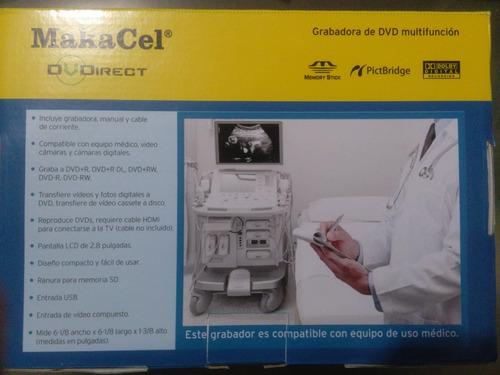 grabador portátil vhs a dvd, ultrasonido médico colposcopía