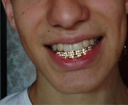 grillz dientes oro fantasía hip-hop blink