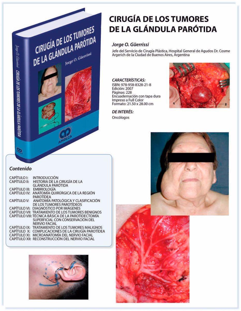 Guerrisi, Cirugía De Los Tumores De La Glándula Parótida - Bs ...