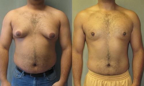 gynectrol elimina tus pechos de grasa rápidamente