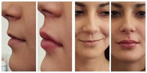 ha, hialuronico de relleno facial 10 ml