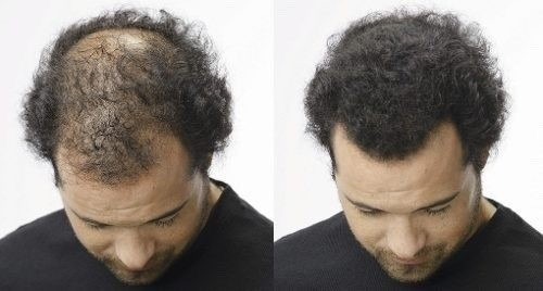hair dexe fully fibra capilar toppik elimina calvicie