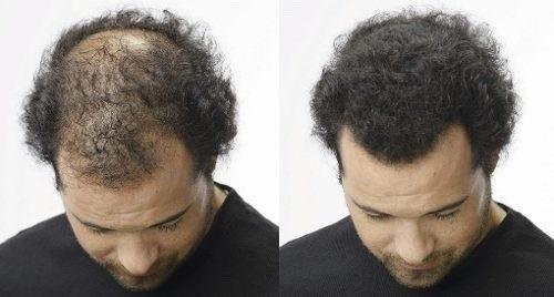 hair pro fully fibra capilar toppik color