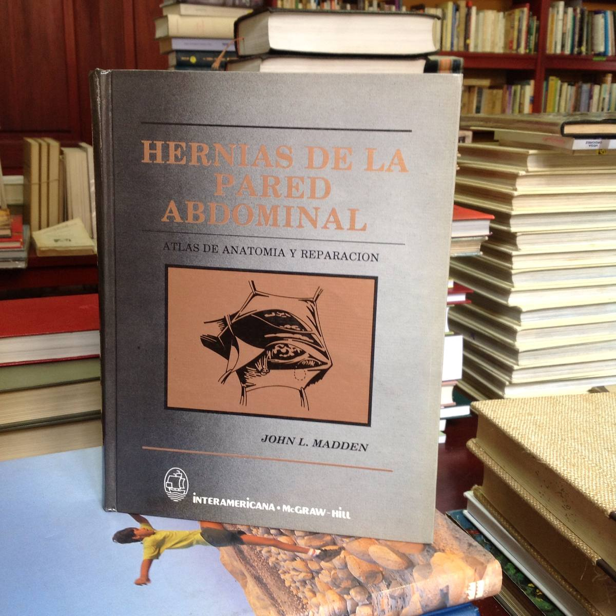 Atractivo Hernia Anatomía Fotos Regalo - Imágenes de Anatomía Humana ...
