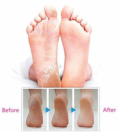 herramientas de pedicura para el cuidado de los pies, afeita