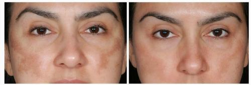 hialuronico ac. retinol e hidroquinona- melasma rugas