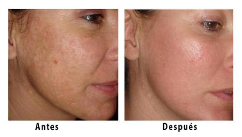 hidratante rostro cuello arrugas manchas piel bonita
