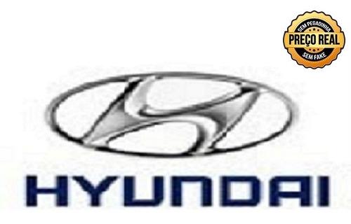 hyundai hb20s 1.6 premium 16v flex 4p manual