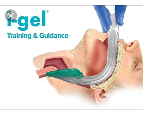 i-gel intersurgical