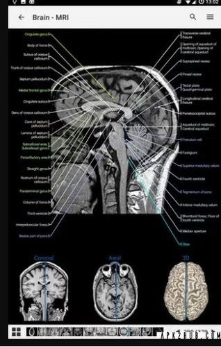 imaios anatomy software radiologia anatomia radiologica