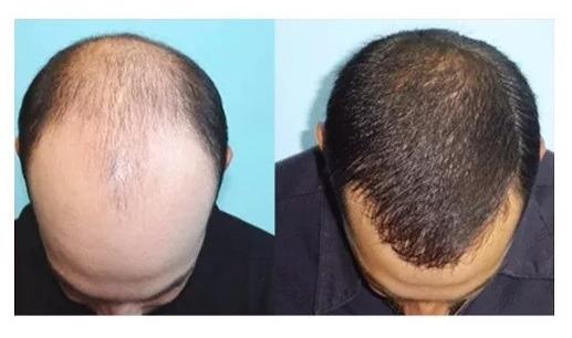 Imecap hair resultado