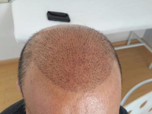 implante capilar , pelo x pelo , consulta sin cargo!!!!!!!!!