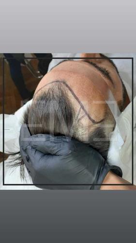 implante capilar pelo x pelo sin cicatriz en 1 sola sesión
