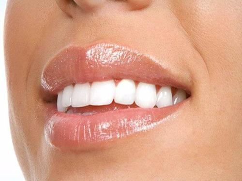 implante + corona de porcelana. precio promocional!!!