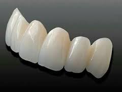 implante dental + corona de porcelana