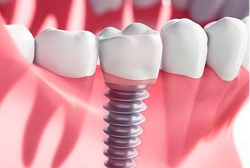implante dental (especialista). primer etapa