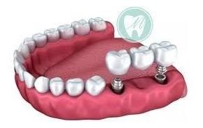 implante dentales