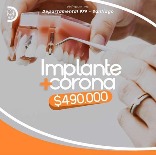 implante + rehabilitación por $490.000.-