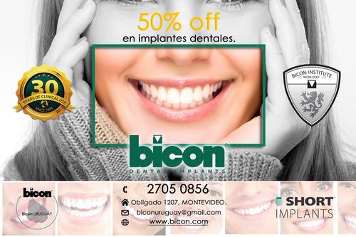 implantes dentales 50% off-simples o múltiples-prótesis.usa
