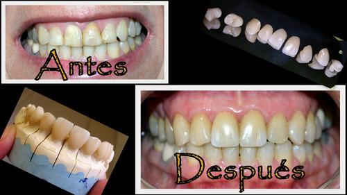 implantes dentales a cargo de especialistas (promoción)