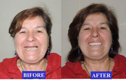 implantes dentales  campañas  precios económico perú