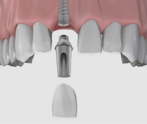 implantes dentales . consulta