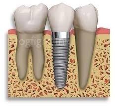 implantes dentales, consulta sin cargo
