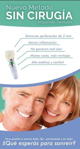 implantes dentales  cordoba