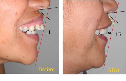 implantes dentales de campaña  baratos comodos economicos