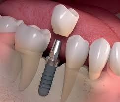 implantes dentales en cordoba - promo 2018 -