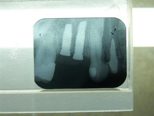 implantes dentales (especialista). primer etapa