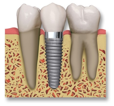 implantes dentales. implantes unitarios y multiples.