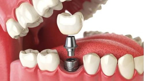 implantes dentales.  montevideo, colonia, san jacinto