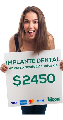 implantes dentales- prótesis completa- 12 x $2450!!