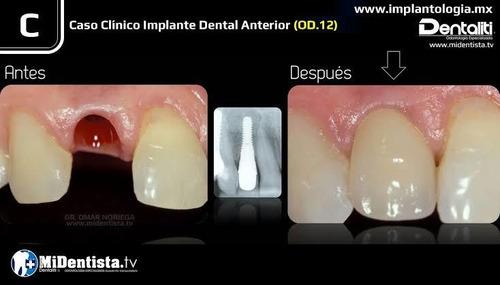 implantes dentales salamanca gto. ¬ dr. omar noriega cadcam