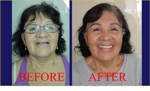 implantes dentales, tratamientos, económicos