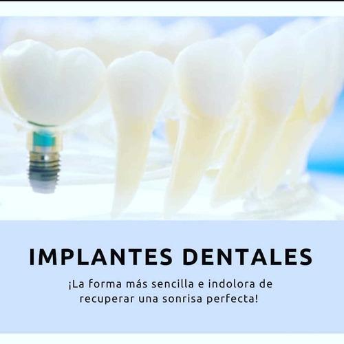 implantes dentales.clinicas montevideo, colonia, san jacinto