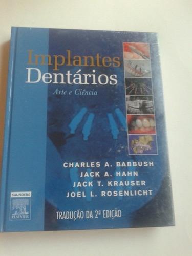 implantes dentários: arte e ciência - frete grátis*