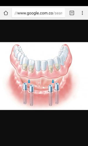 implantologia oral y reconstructiva