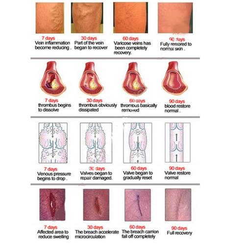inflamación estática spray para ungüentos venosos pulso lepi