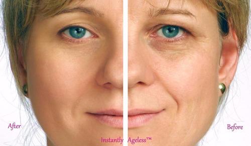 instantly ageless botox facial inmediato quita arrugas crema