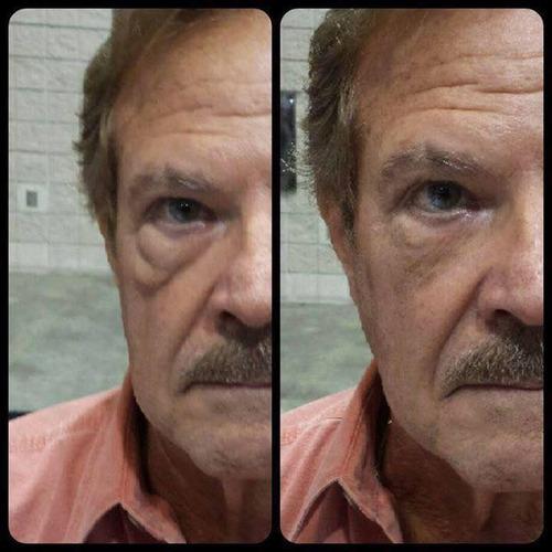 instantly ageless juventud facial  x 12  por docena