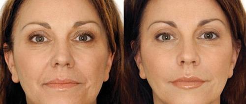 instantly ageless peru lima chorrillos viales efecto botox