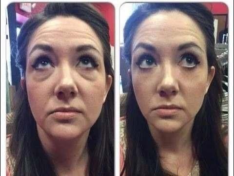 instantly ageless quita arrugas, marca acné,ojeras 2 minutos